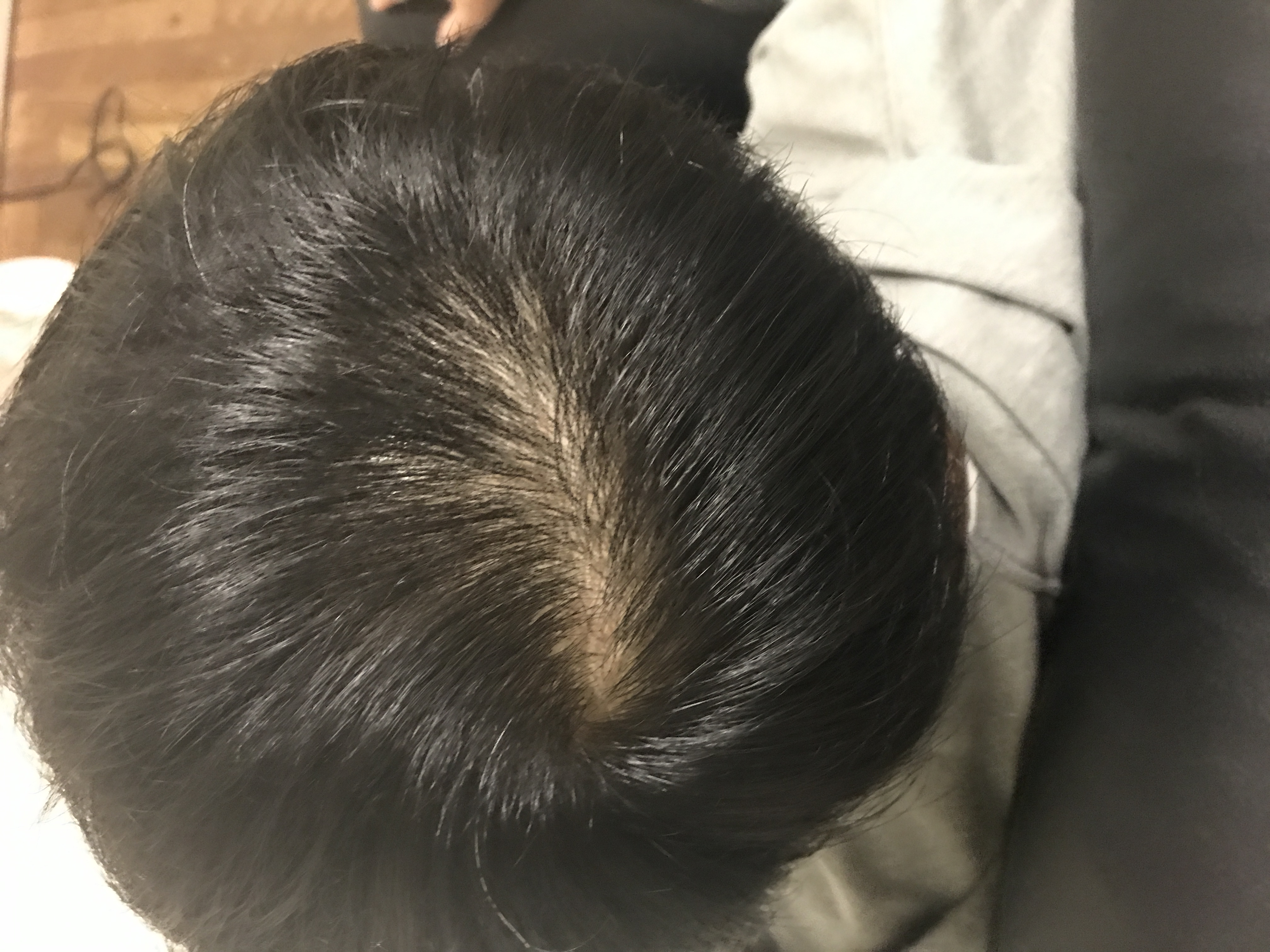 はげ 髪の毛 分け目